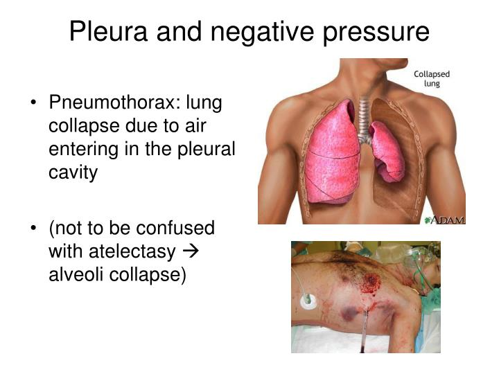 Pneumothorax: lung collapse due to air entering in the pleural cavity