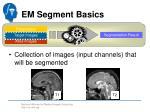 em segment basics3