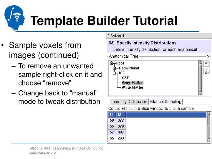 Template Builder Tutorial