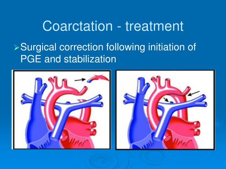 Coarctation - treatment