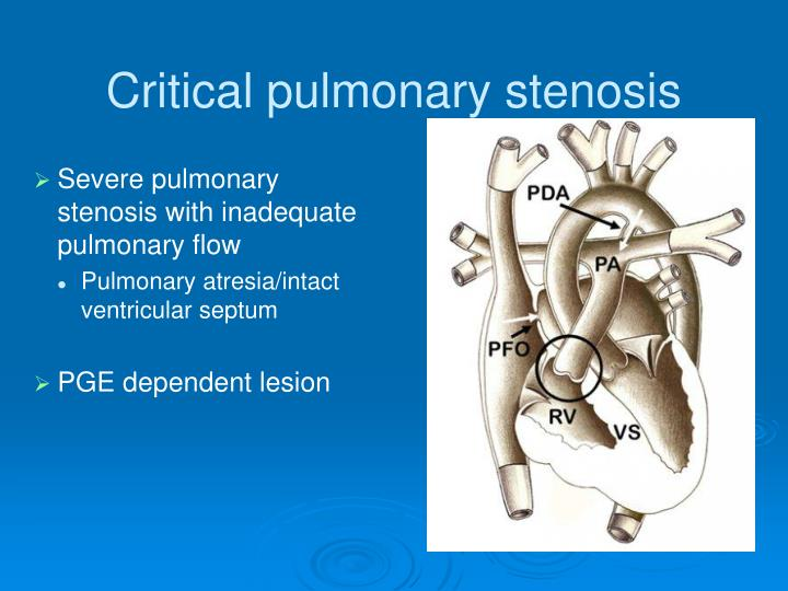 Critical pulmonary stenosis