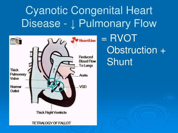 Cyanotic Congenital Heart Disease - ↓ Pulmonary Flow