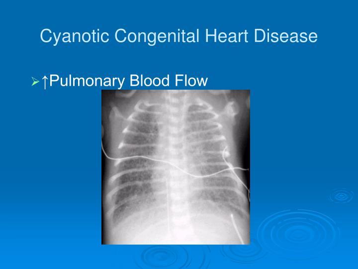 Cyanotic Congenital Heart Disease