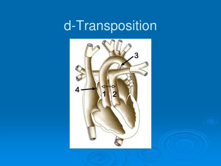 d-Transposition
