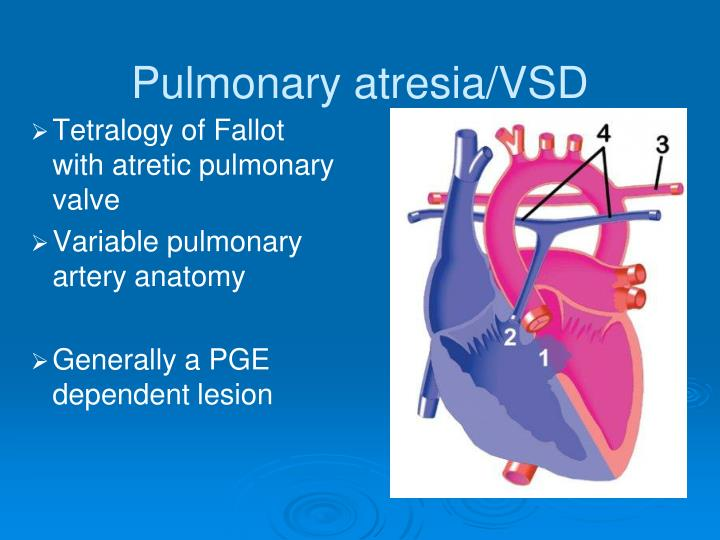Pulmonary atresia/VSD