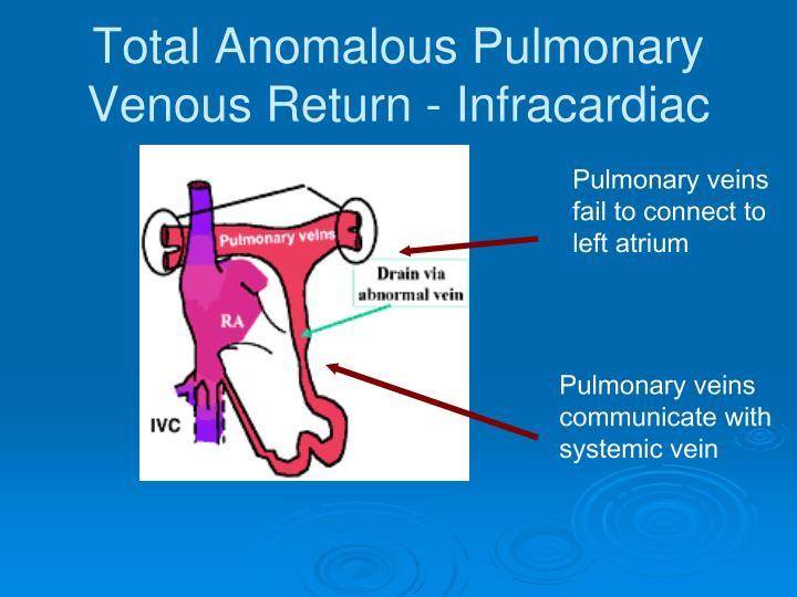 Total Anomalous Pulmonary Venous Return - Infracardiac
