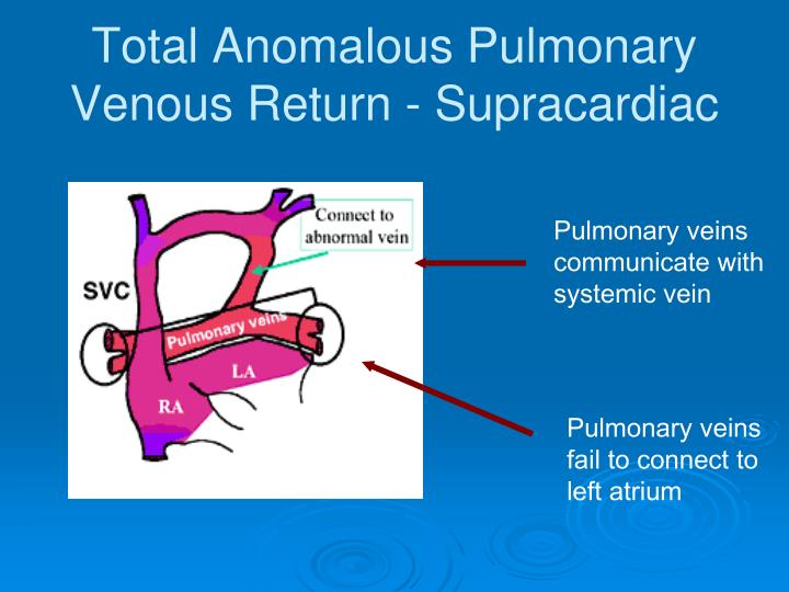 Total Anomalous Pulmonary Venous Return - Supracardiac