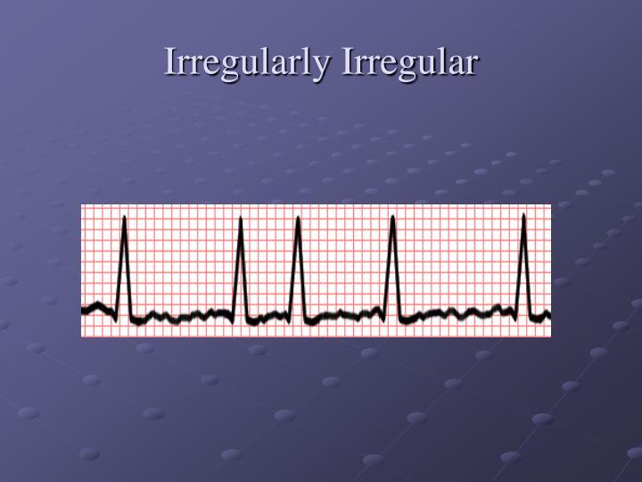 Irregularly Irregular