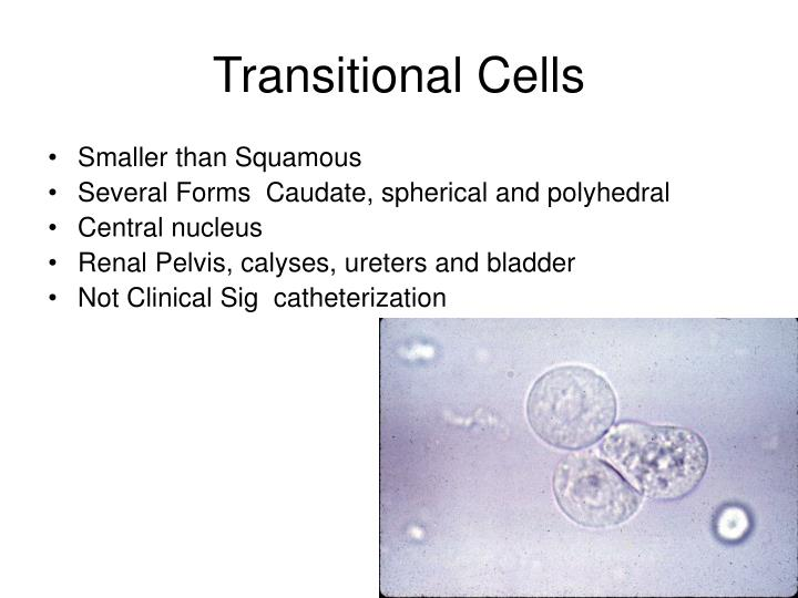 Transitional Cells