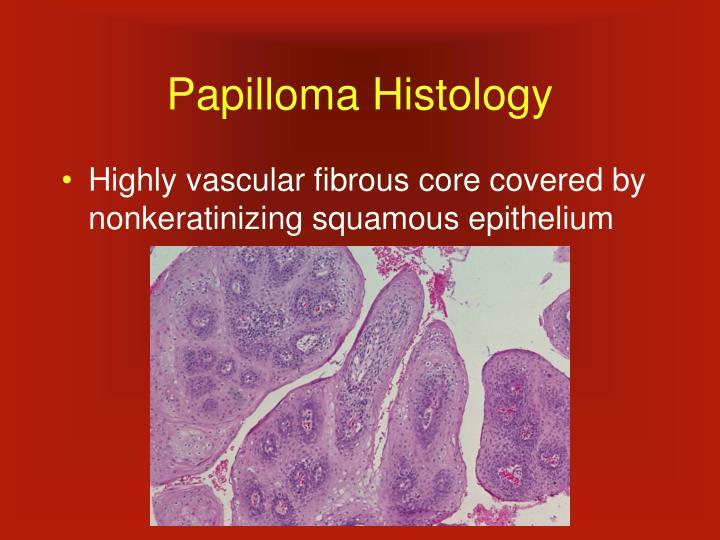 Papilloma Histology