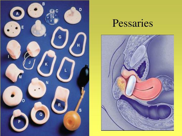 Pessaries