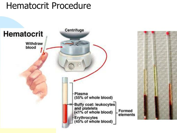 Hematocrit Procedure