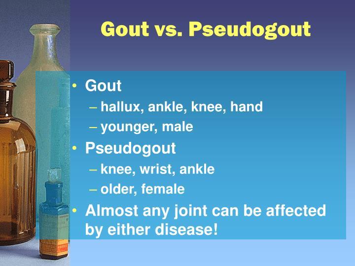 Gout vs. Pseudogout