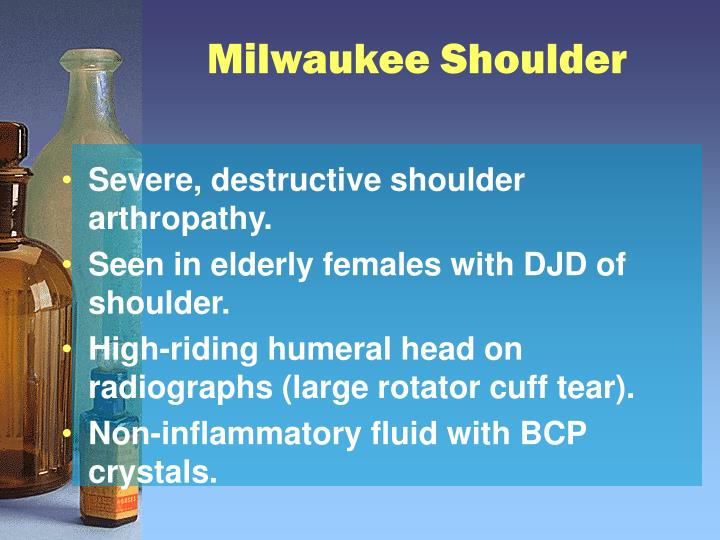 Milwaukee Shoulder