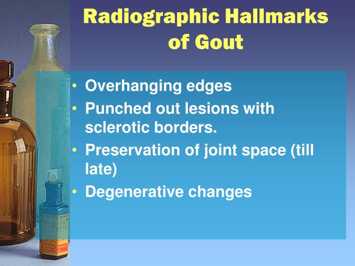 Radiographic Hallmarks of Gout