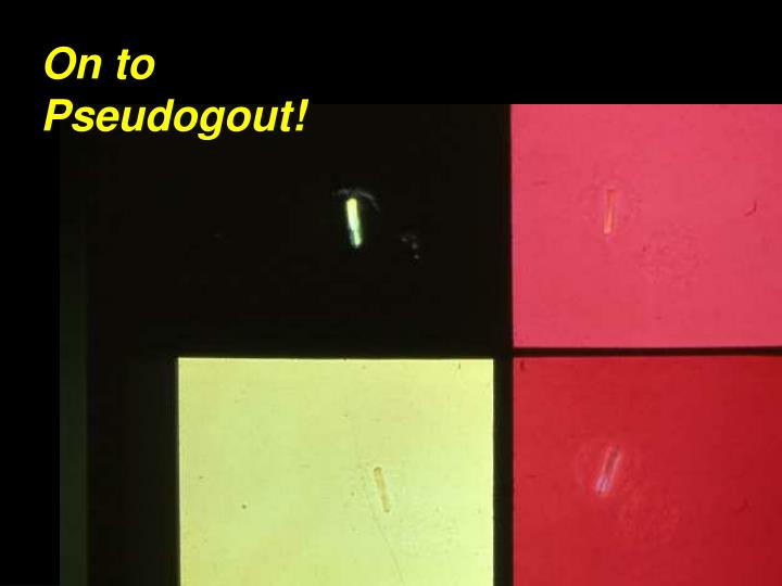 On to Pseudogout!