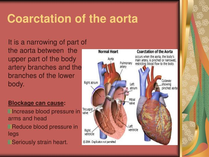 Coarctation of the aorta1
