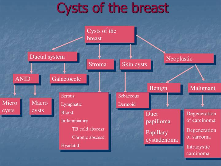 Cysts of the breast