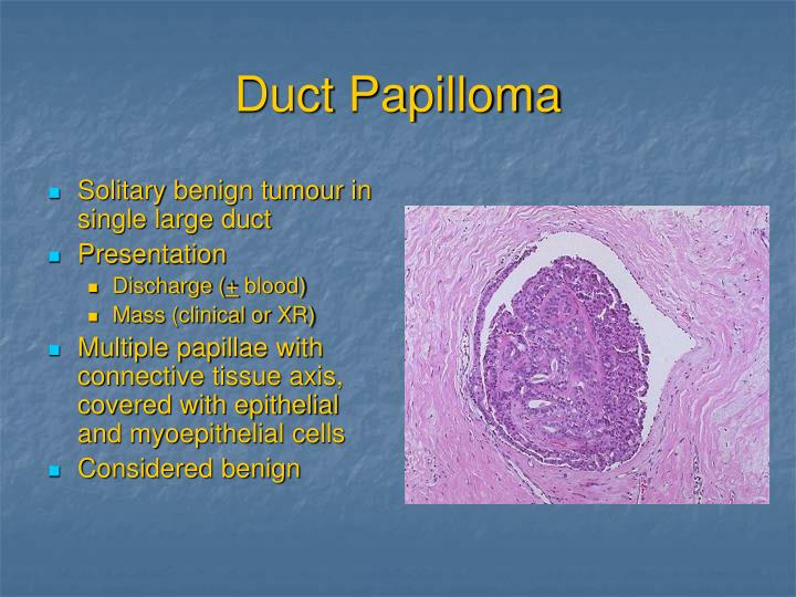Duct Papilloma