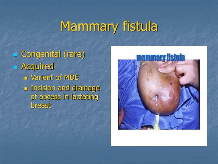 Mammary fistula