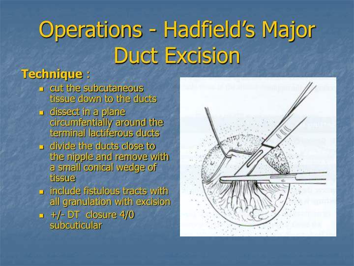 Operations - Hadfield's Major Duct Excision