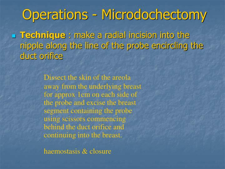 Operations - Microdochectomy