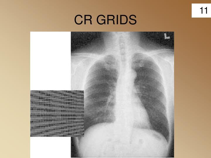 CR GRIDS