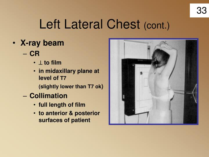Left Lateral Chest