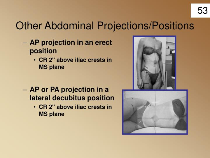 Other Abdominal Projections/Positions