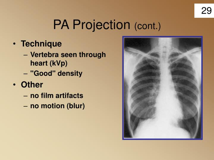 PA Projection