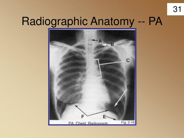 Radiographic Anatomy -- PA