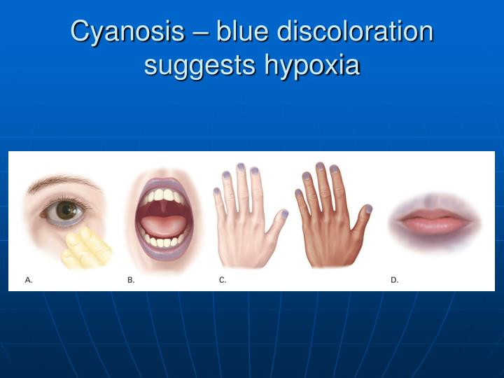 Cyanosis – blue discoloration suggests hypoxia