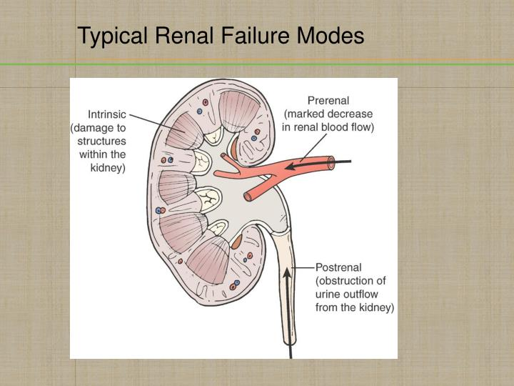 Typical Renal Failure Modes