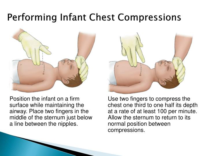 Performing Infant Chest Compressions