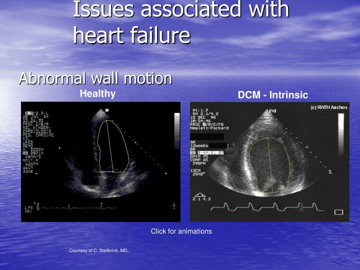 Issues associated with heart failure