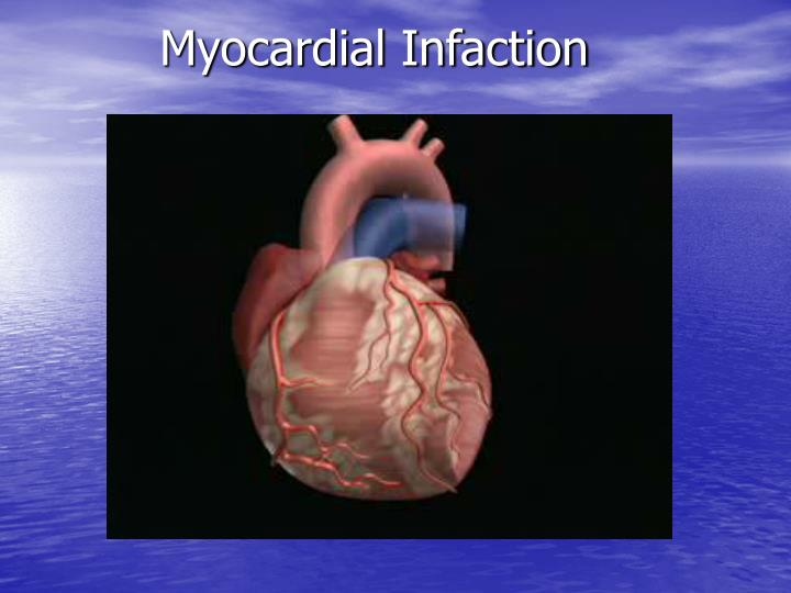 Myocardial Infaction