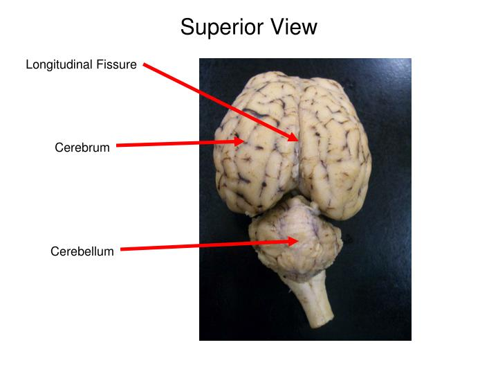 Superior View