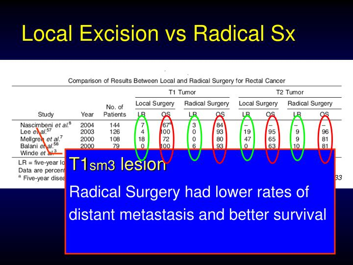 Local Excision vs Radical Sx