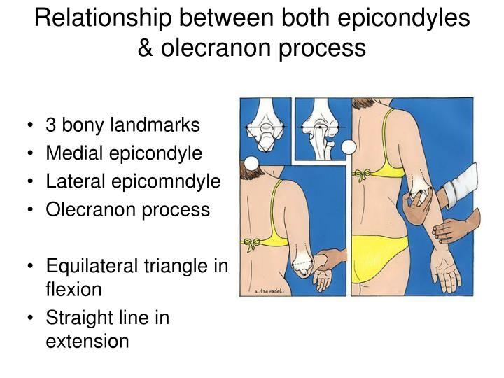 Relationship between both epicondyles & olecranon process