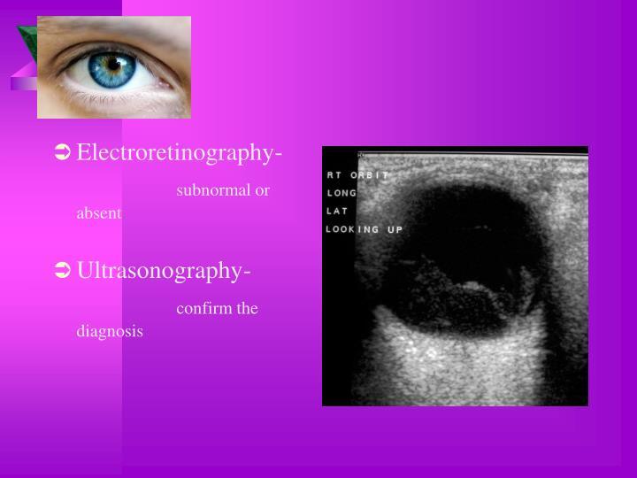 Electroretinography-