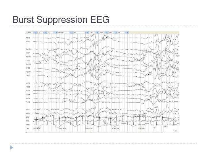 Burst Suppression EEG