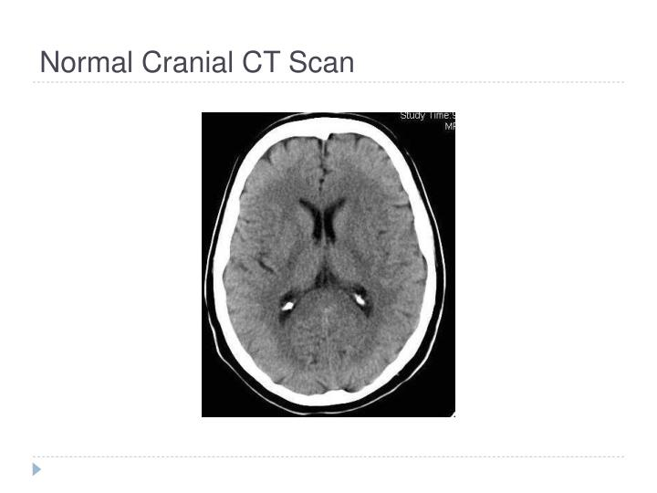 Normal Cranial CT Scan