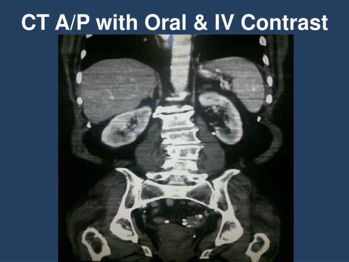 CT A/P with Oral & IV Contrast