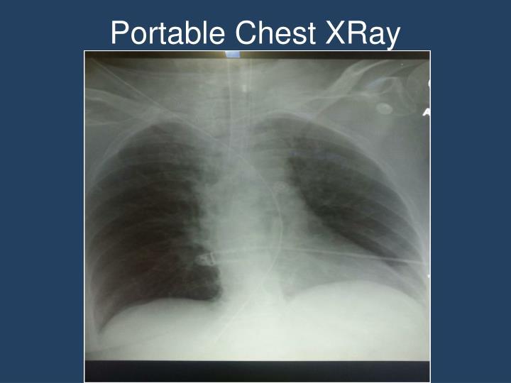Portable Chest XRay