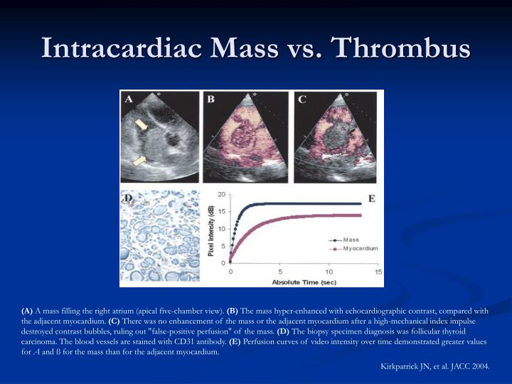 Intracardiac Mass vs. Thrombus