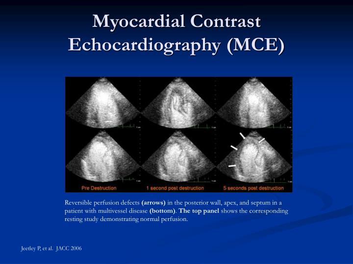 Myocardial Contrast Echocardiography (MCE)
