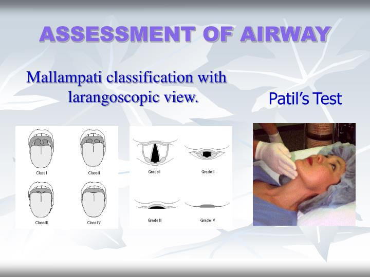 ASSESSMENT OF AIRWAY