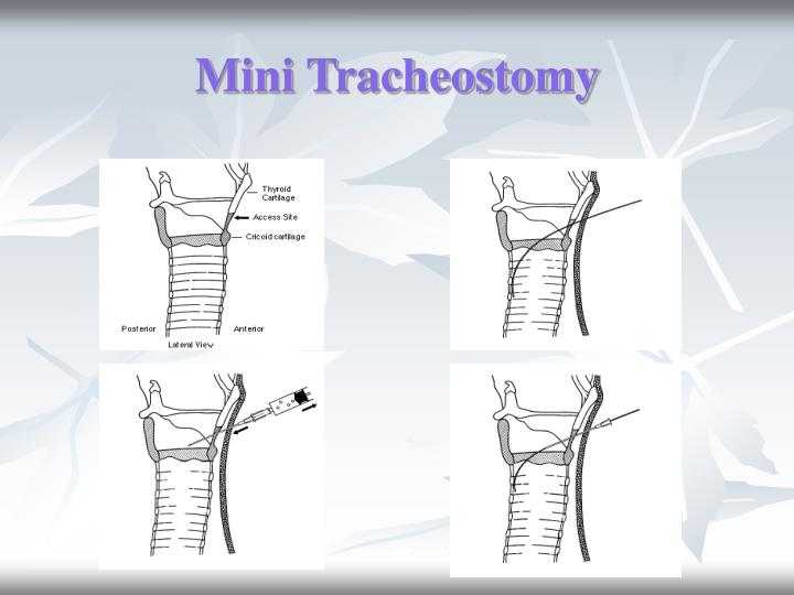 Mini Tracheostomy