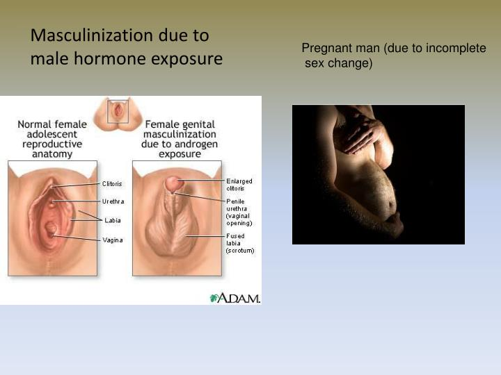 Masculinization due to male hormone exposure