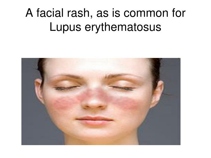 A facial rash, as is common for Lupus erythematosus